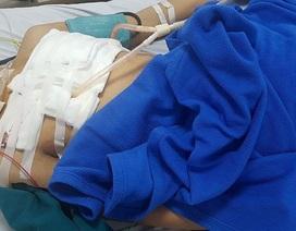 Cứu thành công bệnh nhân đa chấn thương do tai nạn, nguy cơ tử vong cao