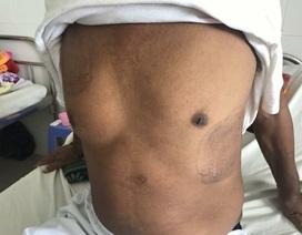 Sốc điện 12 lần cứu bệnh nhân bị nhồi máu cơ tim cấp