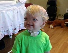 Em bé sinh ra không có mũi qua đời ở tuổi lên 2