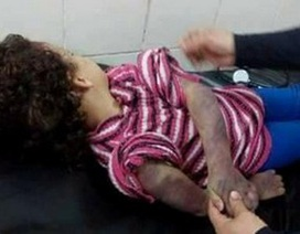 Bé gái 5 tuổi bị cha đánh chết vì không làm bài tập