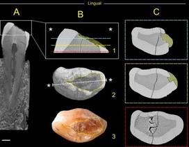 Tìm thấy chất trám răng cổ nhất ở Ý