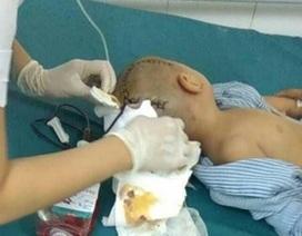 Bé 3 tuổi phải phẫu thuật vì bị chấn thương sọ não ở trường