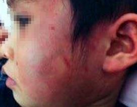 Vụ bé 4 tuổi bị đánh bầm tím toàn thân: Kỷ luật hiệu trưởng và cô giáo