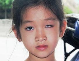 Học sinh bị ném thước tại trường khiến một mắt mù vĩnh viễn, gia đình bức xúc