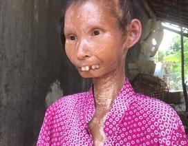 Chuyên gia nói gì về người phụ nữ xinh đẹp 34 tuổi thành bà lão nặng 24 kg