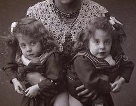 Cuộc đời bi kịch của cặp chị em song sinh dính liền nổi tiếng thế giới