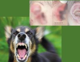 Chó cắn nát tai bé 18 tháng tuổi