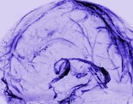 Phát hiện mới về cơ chế loại bỏ chất độc hại của não