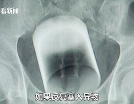 Giải cứu bệnh nhân bị kẹt chiếc cốc dài 8cm trong trực tràng