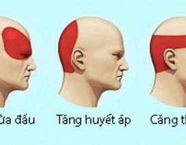 Loại bỏ cơn đau đầu không dùng thuốc trong 5 phút