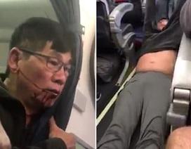 Ám ảnh tiếng la hét trong vụ bác sĩ gốc Việt bị lôi khỏi máy bay