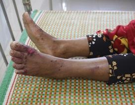 Bộ Y tế yêu cầu Quảng Ngãi chủ động giám sát, phát hiện hội chứng viêm da dày sừng