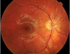 Phát triển mô hình để điều trị sớm bệnh thái hóa điểm vàng