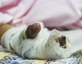 """Bé 5 tuổi bị """"cháy"""" nhiều ngón tay vì cắm dây vào ổ điện"""