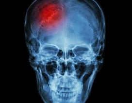 Phương pháp điều trị mới đẩy lùi triệu chứng đột quỵ