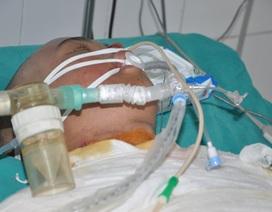 Tính mạng nguy kịch của chàng trai trẻ trong vụ cháy ở xưởng bánh kẹo tại Hoài Đức