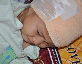 Thương bé gái 2 tuổi bị chó cắn rách toàn bộ da đầu