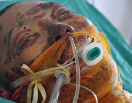 Vợ nghèo đau đớn cùng lúc nhận tin chồng ung thư, con bị bỏng nặng