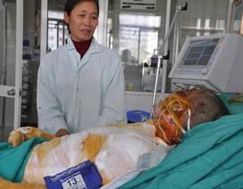 Em Phong bị bỏng nặng đã qua đời