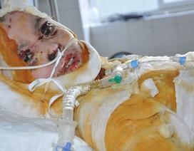 Nổ bình ắc quy xe đạp điện, chàng trai 19 tuổi bị bỏng thập tử nhất sinh