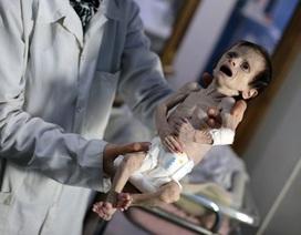 Xuất hiện hình ảnh em bé Syria bé nhỏ như chim khóc vì đói khiến thế giới thắt lòng