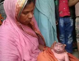 """""""Thần Khỉ"""" ra đời ở Ấn Độ dưới hình hài em bé sơ sinh như người ngoài hành tinh"""