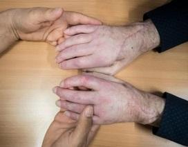 Sự phục hồi kì diệu của 2 bàn tay được cấy ghép