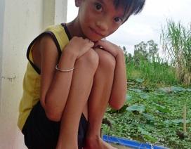 Mắc bệnh tim, bé 10 tuổi chỉ nặng... 12kg
