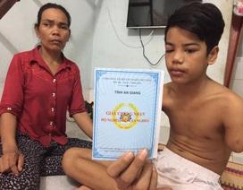 Cậu bé 15 tuổi đi làm công nhân, bị máy cán đứt lìa cánh tay