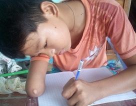 Cậu học trò khuyết tật hiếu học với ước mơ làm bác sĩ