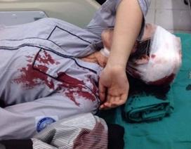 Hà Nội: Nữ sinh bị đánh gãy tay ngay tại cổng trường