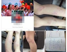 Hà Nội: 11 học sinh lớp 2 bị giáo viên bạo hành gây bức xúc