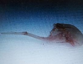 """Bác sĩ """"mò"""" không ra miếng xương cá ghim chặt vào phế quản"""