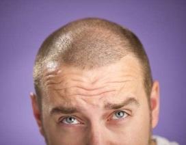 Dinh dưỡng dành cho nam giới hay bị rụng tóc