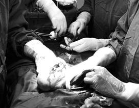 Mẹ con thai phụ suýt tử vong vì sốt xuất huyết