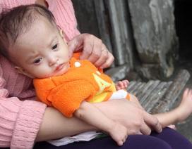 Tiếng khóc xé lòng của bé gái 16 tháng tuổi chỉ cân nặng 2,8kg