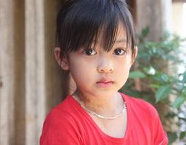 Ánh mắt đáng thương của bé 5 tuổi mắc bệnh phù chân voi