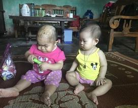 """Kỳ lạ người phụ nữ 27 tuổi mang hình hài """"trẻ lên 2"""" ở Thái Nguyên"""