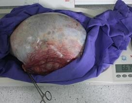 Khối u nặng hơn cặp song sinh chiếm toàn bộ ổ bụng người phụ nữ