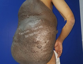 """Chiếc """"mai rùa"""" khổng lồ trên lưng khiến chàng trai 26 năm phải ngủ ngồi"""