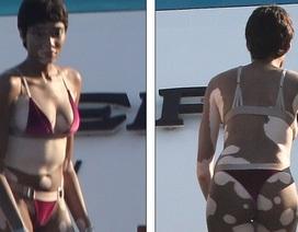 Thân hình loang lổ, người mẫu Canada vẫn tự tin diện áo tắm