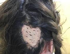 Mất vành tai, lóc da đầu vì... uốn hấp tóc