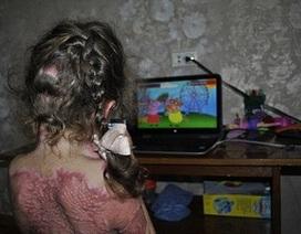 Bé gái 5 tuổi bỏng nghiêm trọng vì làm theo trò lừa lan truyền trên Internet