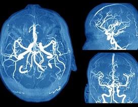 Nhận biết những dấu hiệu đáng sợ của phình mạch não