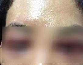 Người phụ nữ tố spa làm mắt bị biến dạng kinh hoàng sau cắt mí