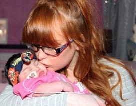 Phút cuối cùng của bà mẹ đau khổ với con gái mới sinh có não ngoài hộp sọ