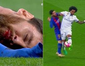 Messi bị thúc cùi chỏ, chảy máu mồm ở trận Siêu kinh điển