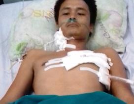 Cứu sống bệnh nhân bị tuốc nơ vít đâm thủng tim