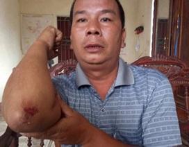 Trưởng công an xã bị tấn công khi ngăn cản cát tặc
