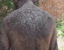 Hy hữu người đàn ông sống chung với làn da vỏ cây 6 thập kỷ